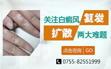 深圳白癫风治疗