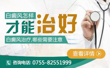 深圳小儿白癜风治疗要注意哪些