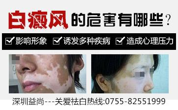 深圳如何保证儿童白癜风患者的治疗效果