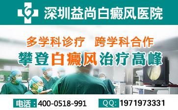 深圳手部白癜风的症状表现都有哪些